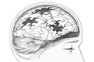 Reversing Alzheimer's with Probiotics?