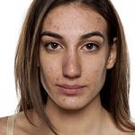 Leyla Weighs In: Getting to the root of acne