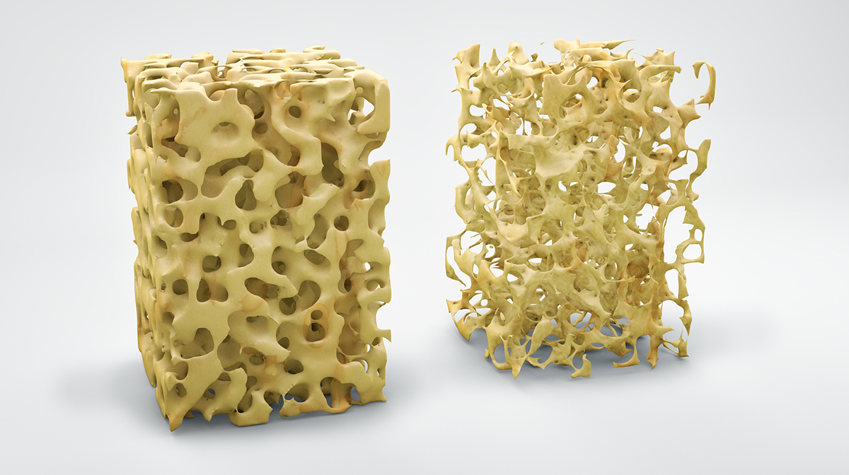 What can be done to improve bone mineral density?